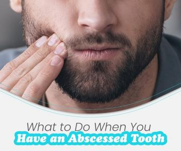 What to do if You Have a Tooth Abscess